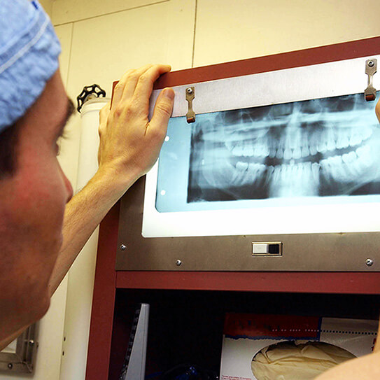 Photo Op: Types Of Dental X-Rays